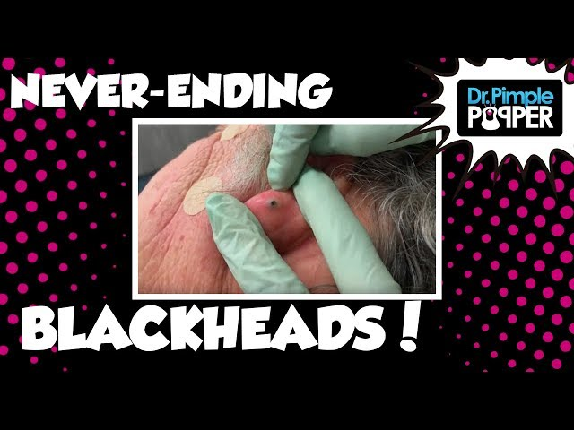 Best blackhead popping and removal videos of 2018 - INSIDER