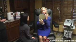 Little Rock, Arkansas - Endoscopic Brow Lift Surgery