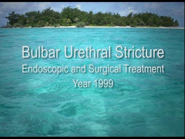 Vintage - Uretroplastica bulbare con lembo libero di mucosa buccale
