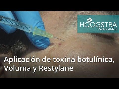 Aplicación de toxina botulínica, Voluma y Restylane (17106)