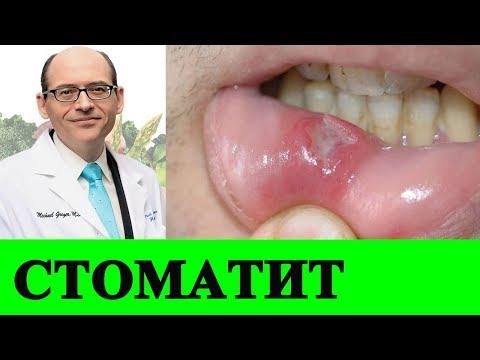 Лечение Стоматита и Витамин B12 - Доктор Майкл Грегер
