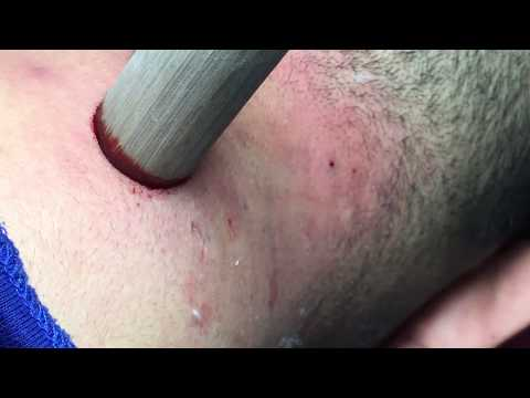 Acne Pea | Get Pustules Clean  ( Official Video )