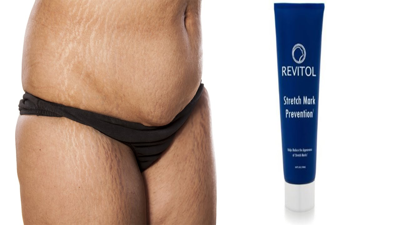 Where To Buy Revitol Stretch Mark Cream In The Philippines Youtube