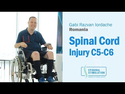 C5-C6 Spinal Cord Injury Patient Gabi from Romania Makes Great Progress After Epidural Stimulation