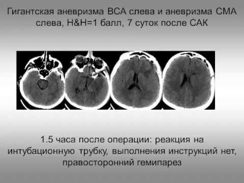 download Психолингвистика за