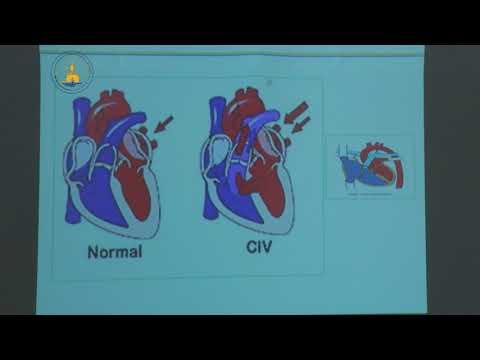 Mode de révélation des cardiopathies congénitales 9