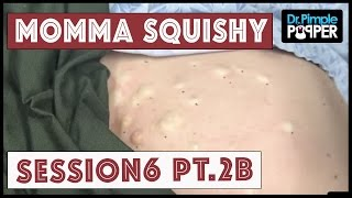 Steatocystomas & Momma Squishy: Session 6 Part 2B thumbnail