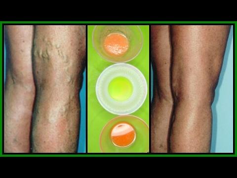 youtube varicose vein treatment