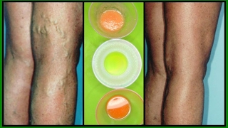 GET RID OF VARICOSE VEINS WITH 3 POWERFUL EFFECTIVE TREATMEN...