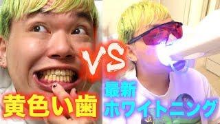 YouTuber史上1番歯が黄色い男VS超最新のホワイトニング
