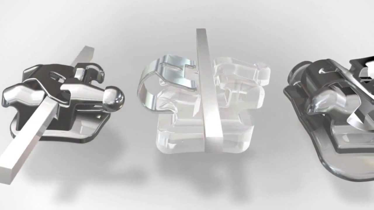 c61291399f868 Aparelho Dentário Autoligado - YouTube