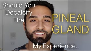 Should You Decalcify The PINEAL GLAND | My Experience..