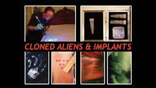 Mass Abduction, Cover Up, Former CIA - Alien Implants & Clones - The Evidence, Derrel Sims