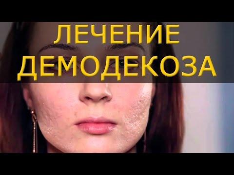 Лечение демодекоза дегтем: клещу очень не понравится