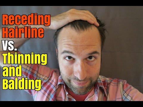 Receding Hairline Vs Thinning And Balding Youtube
