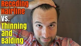 Receding Hairline Vs. Thinning and Balding
