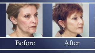 Reversalift Facelift Patient Education Thumbnail