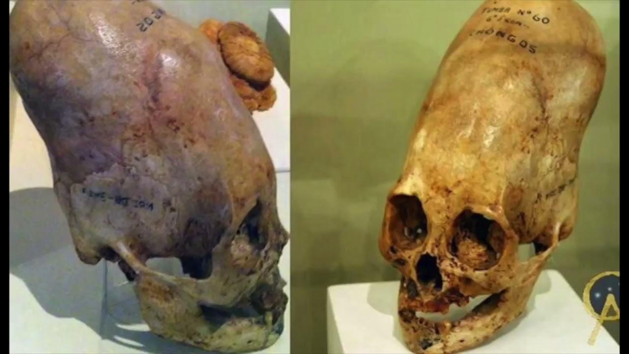 15-JUL-2017 Cráneos Alargados de Paracas, Perú (¿Serán Humanos?)