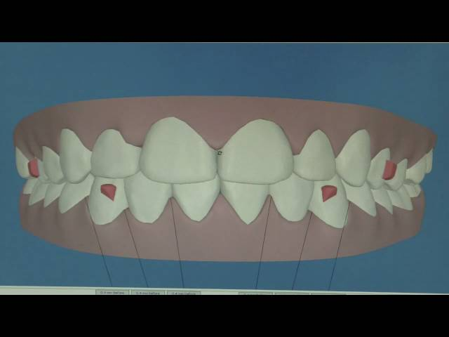 Clincheck for Teen Invisalign in San Diego