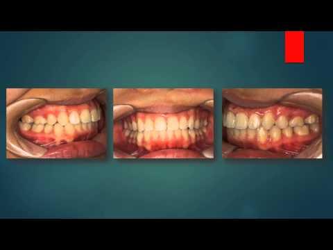 hình ảnh thực tế trước và sau nắn chỉnh răng