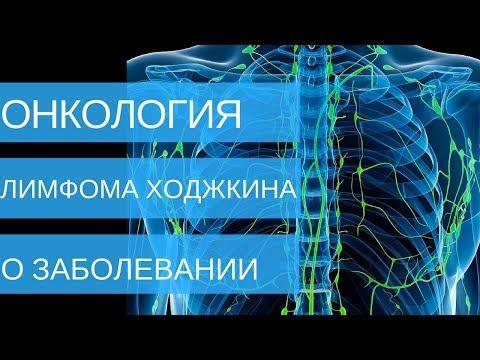 ЛИМФОМА ХОДЖКИНА - о заболевании | Добрый Прогноз