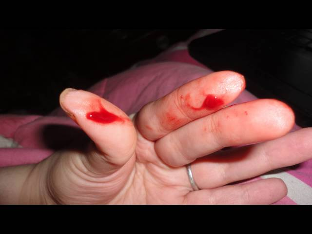 Небольшое кровотечение помле секса