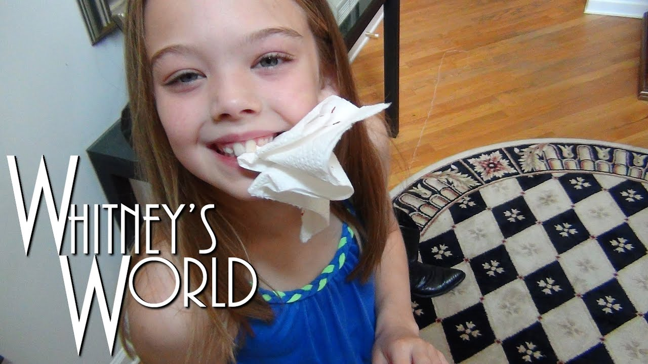 Boot Yanks Out Gymnast's Tooth | Whitney - YouTube