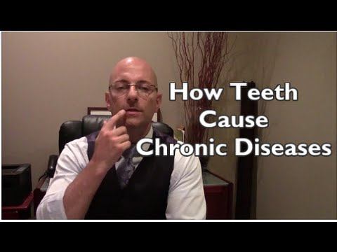 Causes Of Chronic Disease | Dental Connections To Chronic Diseases