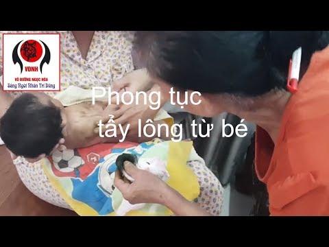 Kỳ lạ loại cây tắm sẽ rụng hết lông | Nguyễn Viết Hòa