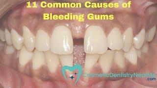 11 Common Causes of Bleeding Gums