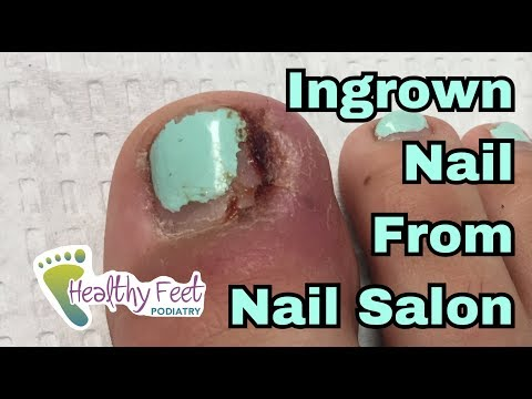 Toenail Tuesday Episode 1:  Ingrown Nail From Nail Salon by Tampa Podiatrist Dr. Binh Nguyen