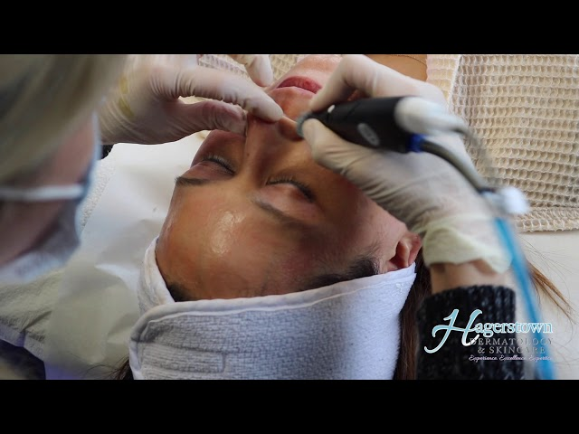 Hydrafacial with Dermaplaning: Your Best Glow Yet