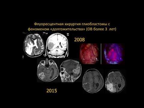 Мозжечок головного мозга: строение и функции, нарушения