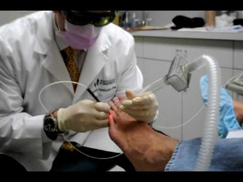 Pinpointe Patholase Laser for Toenail Fungus
