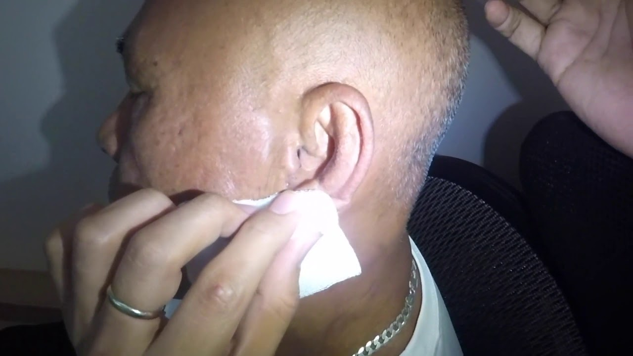 Cotton Stuck in Man's Ear Removal -What's Goin' On Here!