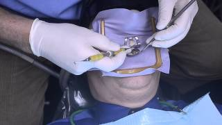 Dr  Michael Hack Chipped Tooth Repair Thumbnail
