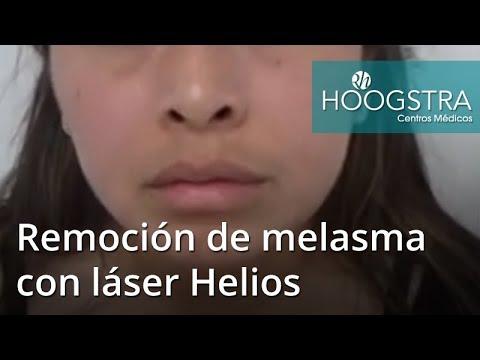 Remoción de melasma con láser Helios (18229)