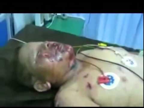 NATO bombing of civilians in Sirt Sirte Libya Libia Libye Libyen 2