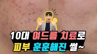10대 여드름 치료로 피부 훈훈해진 썰~ (찐 후기, …