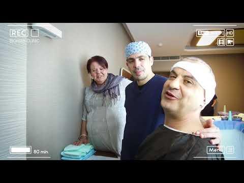 Trapianto di capelli Turchia con Giacomo - Bio Hair Clinic