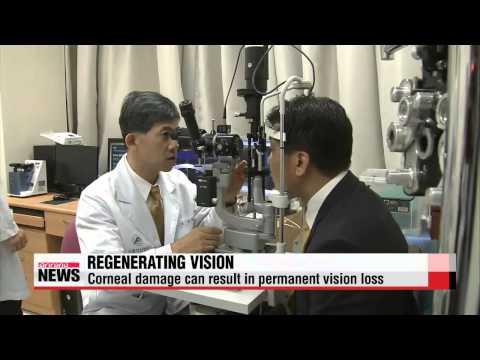 U.S. researchers succeed in repairing corneas using dental stem cells   사랑니 줄기세포