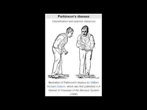 Parkinson's Disease (nigrostriatal dopamine depletion)