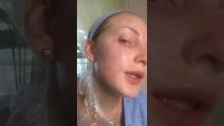 Биоревитализация. Врач косметолог Сосина Раиса Александровна.