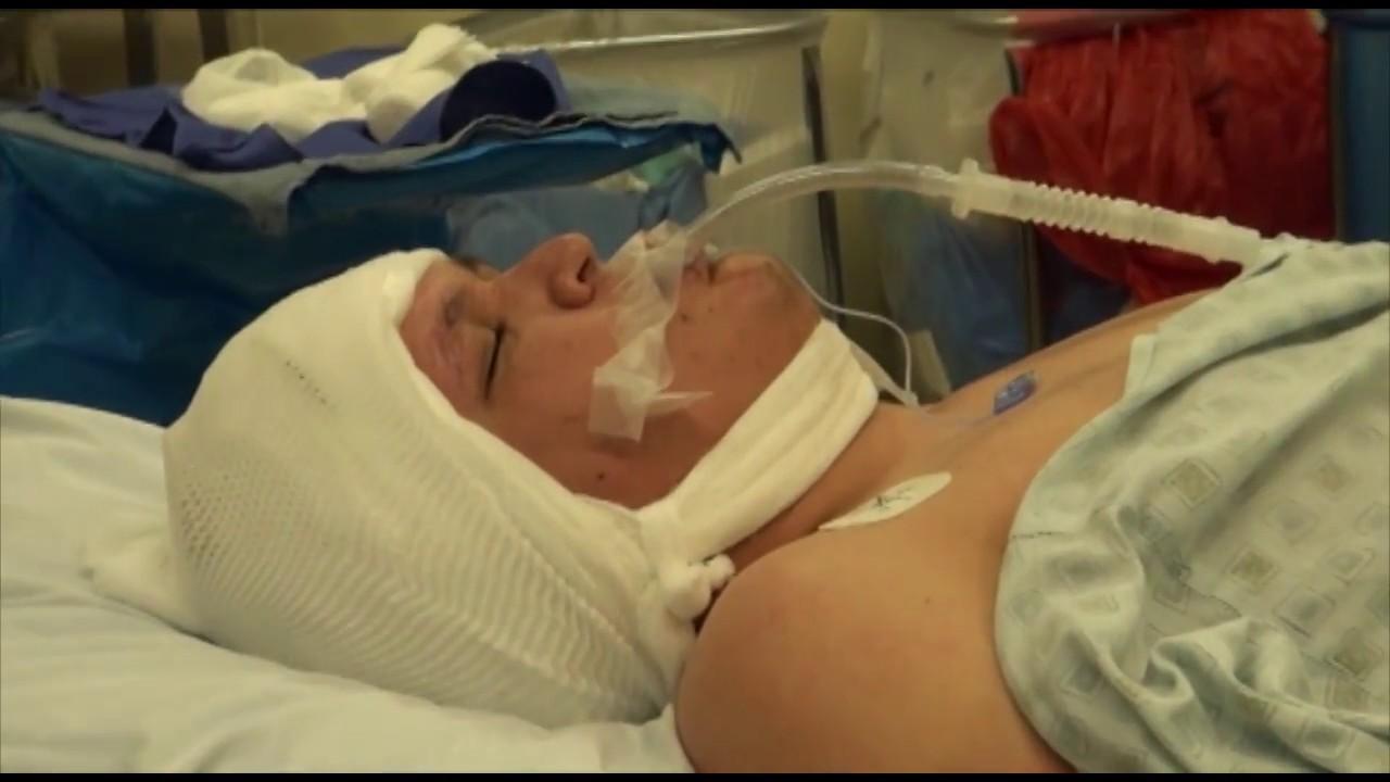 La Cirugía Que Cura la Epilepsia. - YouTube