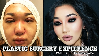 MY PLASTIC SURGERY STORY pt 2 | Double eyelid, Rhinoplasty, Chin liposuction