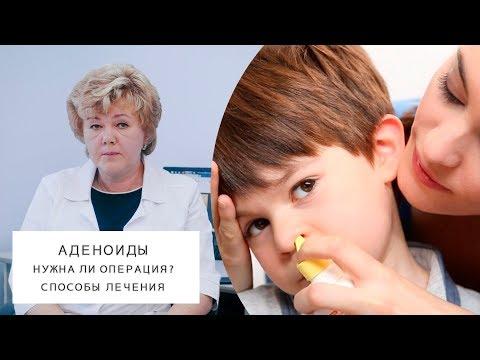 АДЕНОИДЫ | Нужна ли операция? | Способы лечения