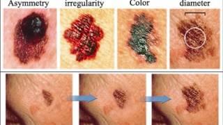 Ciri ciri penderita kanker kulit dan pengobatannya