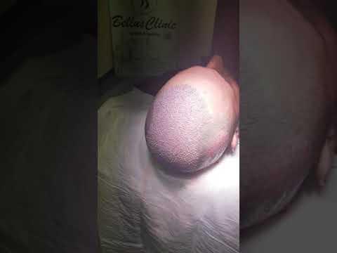 Пересадка волос максимальное количество градусов в Bellus Clinic