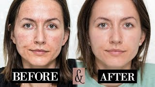 My MICRONEEDLING Experience| + Skin Updates | Before & After