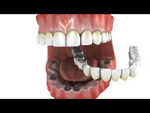 All on 6 Dental Implants | Webster TX